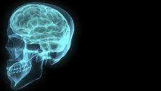 Le point commun entre menstruations, tumeur au cerveau, et stéroïdes anabolisants