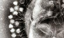 Du nouveau dans la lutte contre les vilains microbes…