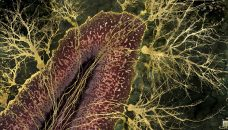 Cerebellar-Lobe1