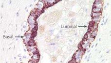 Comprendre le cancer du sein (partie II)
