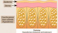 Pourquoi la cellulite est si fréquente chez les femmes ?